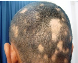 Alopecia Areata: Discovering the Unknown Assassin